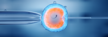 In vitro-Fertilisation