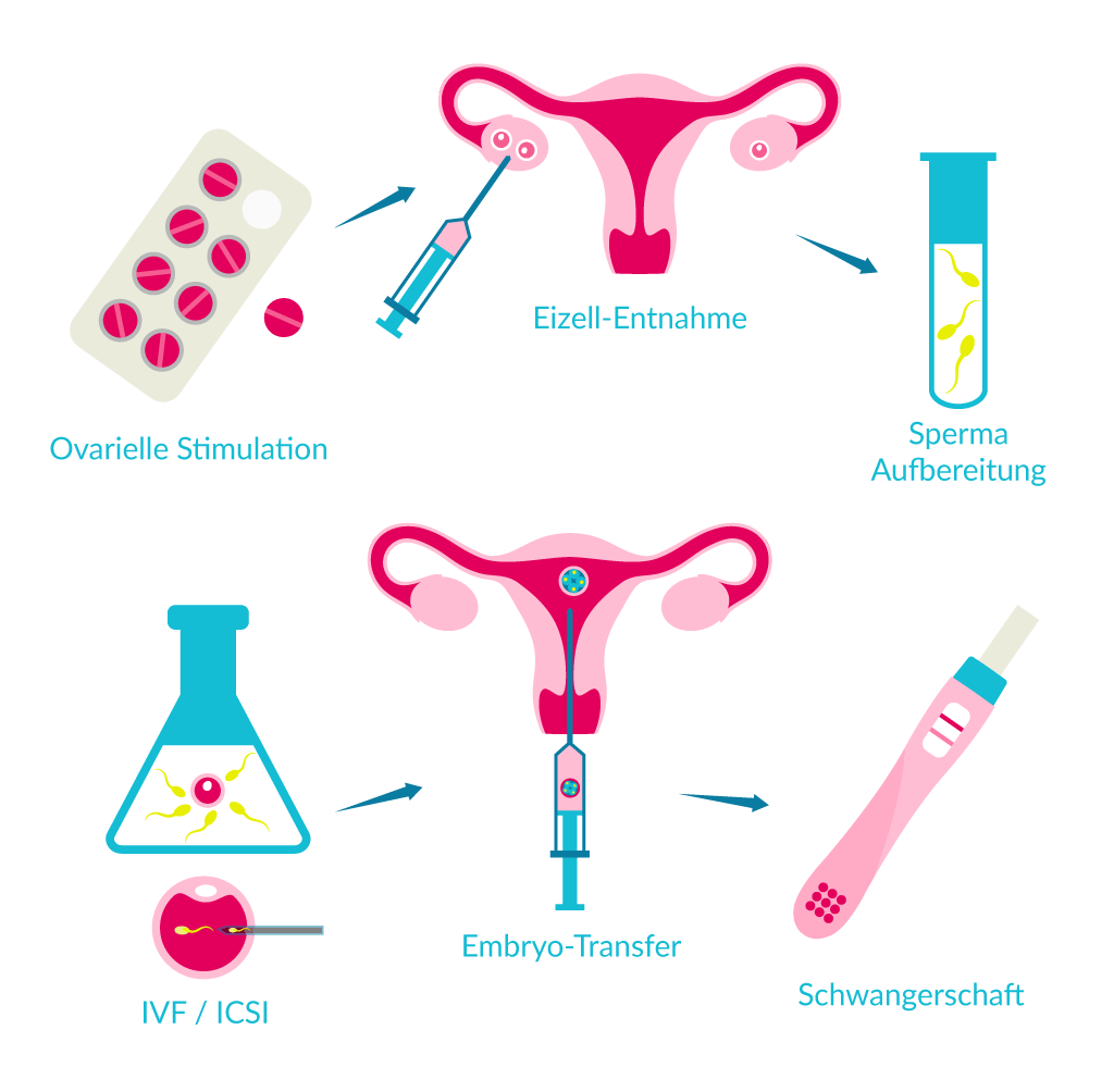 in-vitro-infographic-illustration-ivf_icis